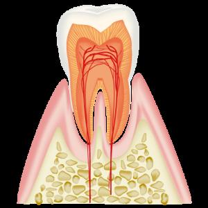 CO エナメル質内の虫歯