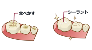 フッ素を定期的に歯の表面に塗布する事で、虫歯になりにくい歯を育てていきます。 シーラント処置