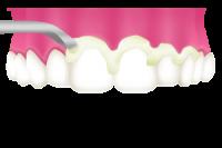 2.歯石を除去(スケーリング)
