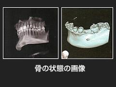 歯科用CT装置 X-era Smart(エクセラ スマート