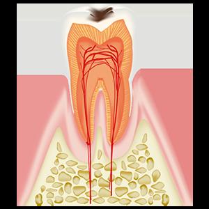 C1エナメル質内のむし歯