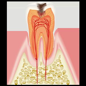 象牙質に達した虫歯