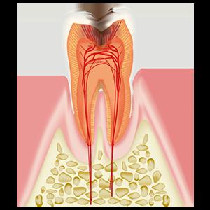 神経に達したむし歯