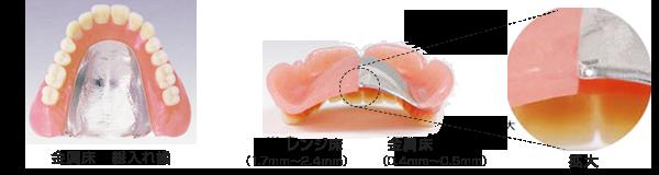 入れ歯の比較