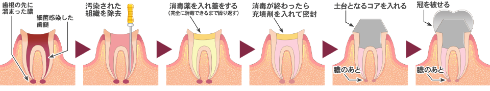 根 処置 感染 管